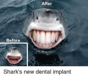 Dental Funny Shark Meme