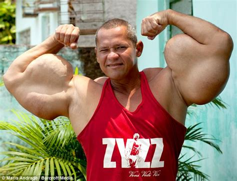 10 worst side effects of steroids abuse