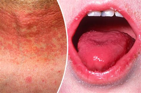 Scarlet Fever Symptoms Outbreaks Reach 50year High. Number 4 Signs Of Stroke. Vinyl Banner Pricing. Eye Wall Murals. Pack Stickers. Production Logo. Fashion Site Banners. Typographic Murals. Ridges Signs