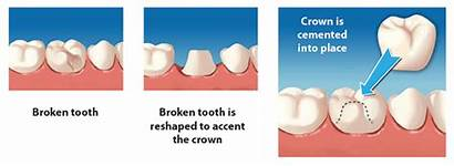 Dental Crowns Crown Bridge Tooth Bridges Porcelain