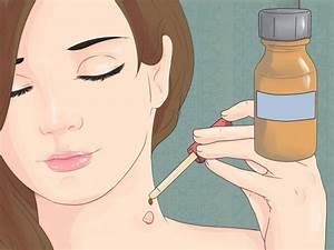 Как в домашних условиях удалить папилломы с шеи в домашних условиях