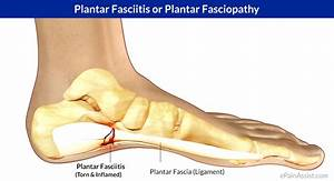 Plantar Fasciitis Or Plantar Fasciopathy Or Jogger U0026 39 S Heel