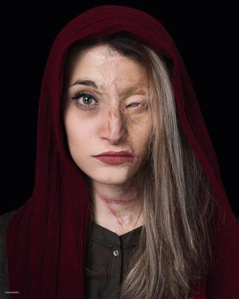 bravery  beautiful iranian girl victim  acid attack