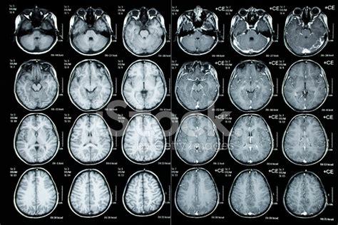 construction window 儿童病人的颅骨层析图像 照片素材 freeimages com