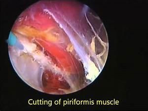 Piriformis Release Endoscopic Treatment Surgery