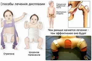 Как лечить грибок на ногах у ребенка в домашних условиях