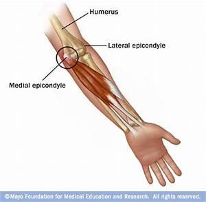 my wrist hurts when i bend it