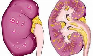 Препараты при мочекаменной болезни и печени и пиелонефрит