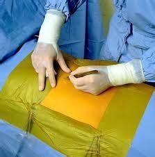 3m Surgical Drapes - 3m drape ioban 2 incise sheet