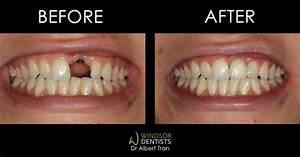 Missing Front Tooth  U0026 Dental Implant  U2013 Windsor Dentists