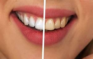Weiße Zähne Hausmittel : wei e z hne bekommen schnell mit oder ohne bleaching und hausmittel ~ Frokenaadalensverden.com Haus und Dekorationen