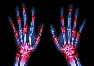 Псориаз лечение кисти рук