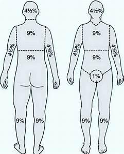 Yousif Alanazi On Twitter   U0026quot  U0026quot Rule Of Nines U0026quot  It Is A Method Of Estimating The Extent Of Burns
