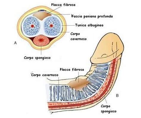 vasi cavernosi peyronie s disease antonini urologyantonini urology