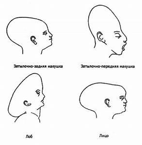 Лечение начальной стадии псориаза