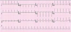 Dr  Smith U0026 39 S Ecg Blog  An Apparent Svt That Does Not