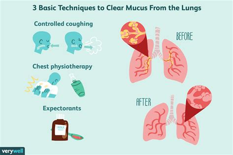 treatments for excess mucus in the lungs