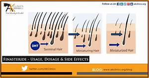 Finasteride  Dosage  Uses  U0026 Side Effects For Hair Loss