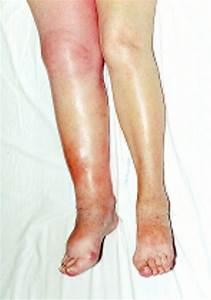Swollen Lower Limb U20141  General Assessment And Deep Vein