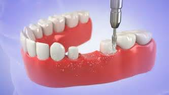 3-Unit Dental Bridge