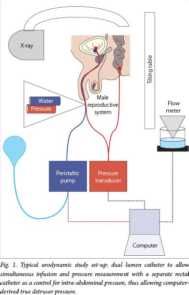 paediatric neuropathic bladder