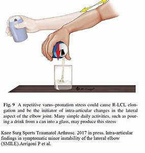Chronic Tennis Elbow Might Be An Instability Issue