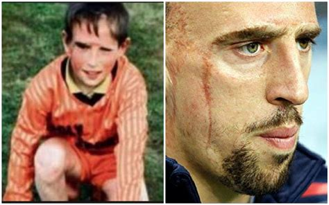 ribery tells emotional story  growing   facial scars