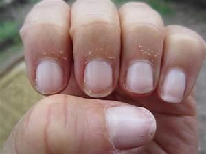 Dry nail bed Photo