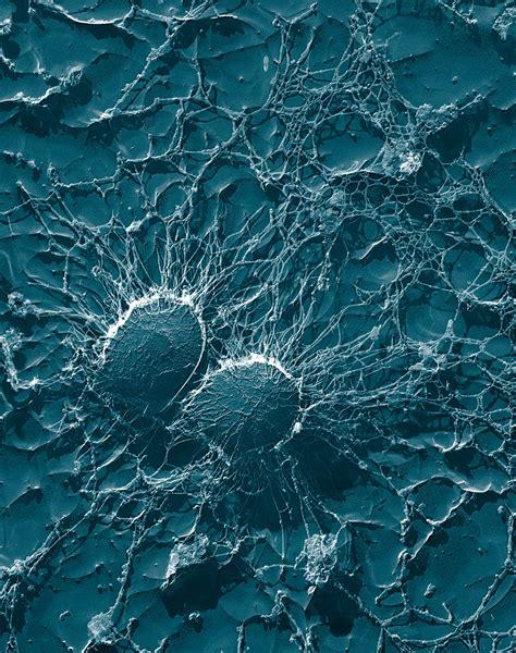 Superbug Symptoms Staph Photos