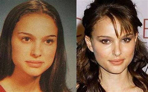 Natalie Portman Nose Job Before After Deviated
