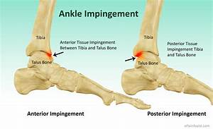 yoga for knee joint pain relief