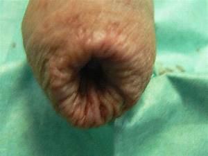 Геморрой и способы его лечения