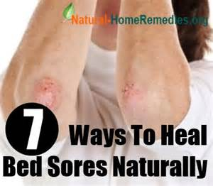 7 ways to heal bed sores naturally home remedies for bed