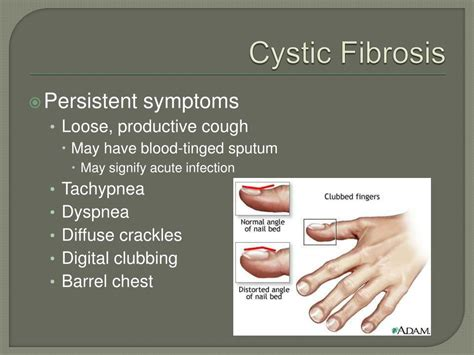 Cf Symptoms Related Keywords Cf Symptoms Long Tail