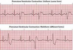 Heart arrythmias - Will premature heart contractions ...