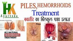 Piles(Hemorrhoids) treatment at home in hindi बवासीर का ...