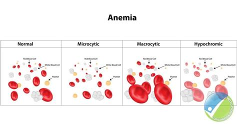 Aplastic Anemia And Mds Awareness Week