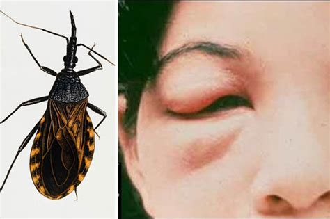 fears  lethal insect kissing bug insect   uk