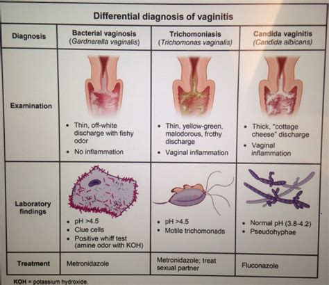 Causes Of Vaginitis And Vaginal Discharge Treat Candida
