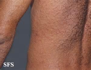 500 26 kb jpeg syphilis secondary syphilis treponema pallidum rash ... Syphilis - secondary