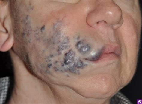 Vascular Malformations | Miami Dermatology and Laser Institute