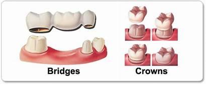 Crowns Bridges Dental Does Dubai Teeth Tooth