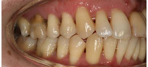 year  man periodontitis kliinik