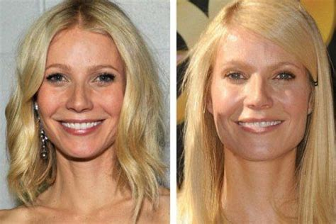 spironolactone hair loss before and gwyneth paltrow botox before and after photos botox gwynethpaltrow harpersbazaar botox