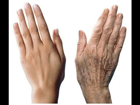 How to Remove Age Spots on Your Hands - Remove Dark Spots