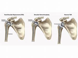 Guide To Total Shoulder Replacement