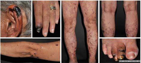 vasculitis primary care dermatology society uk