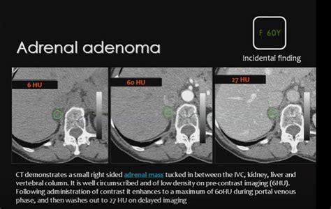 adrenal adenoma washout administration enhancement