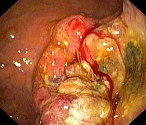 Symptome des Helicobacter pylori