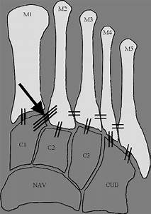 Diagram Illustrating The Stabilizing Ligaments Of The